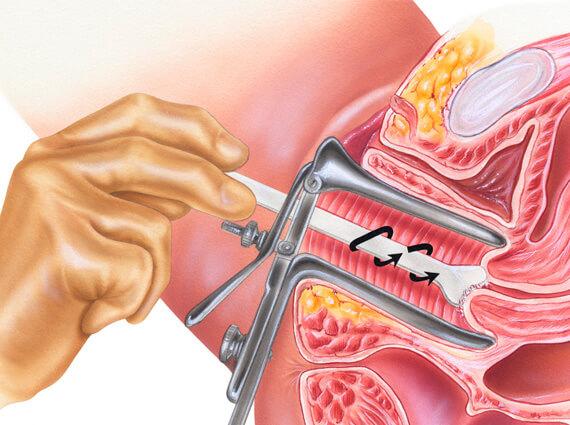 urologo en guadalajara
