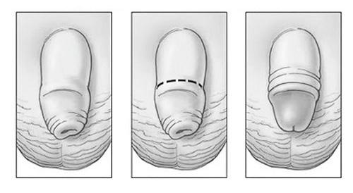 Laser circumcision